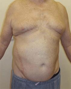 Incisional Hernia. Figure 8. Melbourne Hernia Clinic.