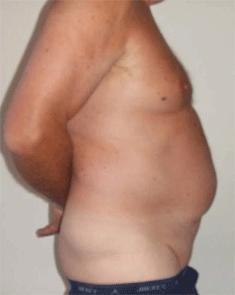 Incisional Hernia. Figure 2. Melbourne Hernia Clinic.