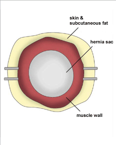 Incisional Hernia. Figure 3. Melbourne Hernia Clinic.