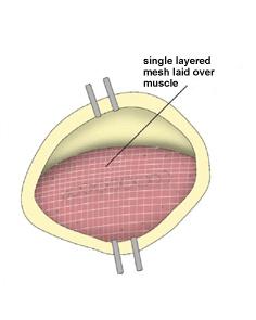 Incisional Hernia. Figure 6. Melbourne Hernia Clinic.