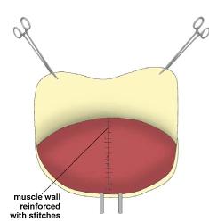 Incisional Hernia. Figure 5. Melbourne Hernia Clinic.