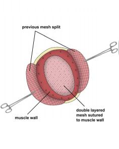 Incisional Hernia. Figure 4. Melbourne Hernia Clinic.