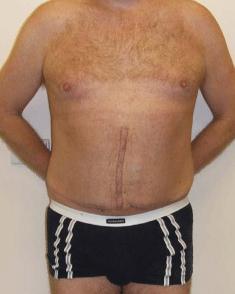 Incisional Hernia. Figure 7. Melbourne Hernia Clinic.