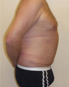 Incisional Hernia.Figure 8. Melbourne Hernia Clinic.