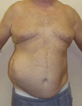 Incisional Hernia. Figure 1. Melbourne Hernia Clinic.